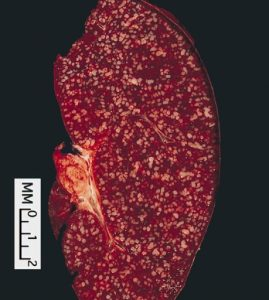 Follicular_lymphoma,_spleen